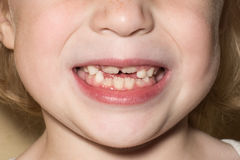 Child teeth of a girl. Growing child teeth of a girl Royalty Free Stock Photos