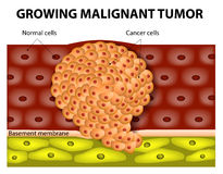 Growing malignant tumor. Cancer cells in a growing malignant tumor. malignant neoplasm. metastasis Royalty Free Stock Images