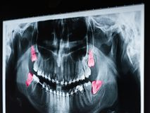 Growing Wisdom Teeth Pain On X-Ray. Film stock image