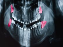 Growing Wisdom Teeth Pain On X-Ray. Film royalty free stock images