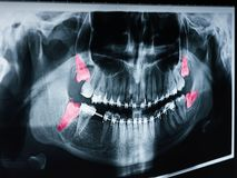 Growing Wisdom Teeth Pain On X-Ray. Film stock photography