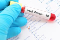 Growth hormone test. Blood sample for growth hormone test Royalty Free Stock Photos