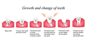 Growth and shift teeth in humans. Stages of development of teeth. Children multiplekatsionny style. Infographics Stock Photo