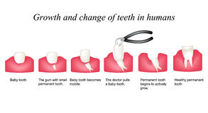 Growth and shift teeth in humans. Stages of development of teeth. Infographics. Vector illustration on background