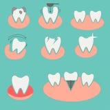 Grupo de ícones conceptuais dentais Foto de Stock Royalty Free