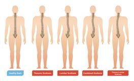 Grupo de Infographic da curvatura espinal ilustração royalty free