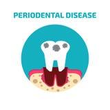 Grupo do ícone da doença peridental Ilustração do vetor Imagem de Stock Royalty Free