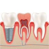 Grupo do implante dental Eps 10 Imagens de Stock Royalty Free