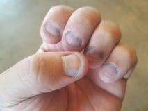 Gryźć i brudni paznokcie Zdjęcia Stock