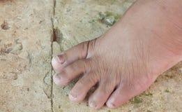 Grzyb przy palec u nogi stara kobieta Fotografia Stock