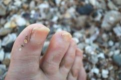 Grzybowa choroba gwoździa łóżko palec u nogi i gwóźdź fotografia stock