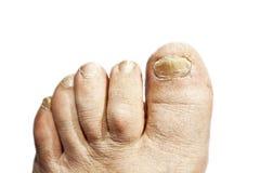 Grzybowa infekcja na gwoździach zdjęcia stock