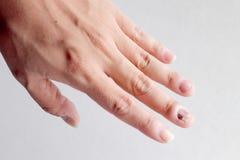 Grzybowa infekcja na gwoździach Wręcza, Dotyka z onychomycosis, - miękka ostrość Obrazy Stock