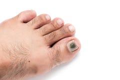 Grzyby na toenail odizolowywającym Obraz Royalty Free