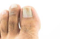 Grzyby przy toenail Obrazy Stock