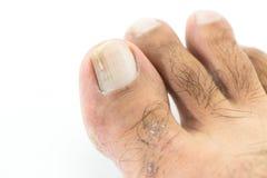 Grzyby przy toenail Zdjęcie Stock