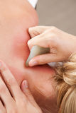 Gua Sha Acupressure-Behandlung Stockfotos