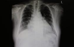 Guasto di scompenso cardiaco Fotografia Stock Libera da Diritti