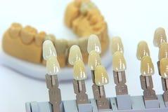 Guida di colore con i denti della porcellana dietro Fotografie Stock