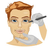 Guide lines for surgical incisions on a patient male face. On white background Royalty Free Stock Images