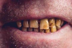 Gula och krökta tänder av en rökare som täckas med den tand- stenen royaltyfria bilder