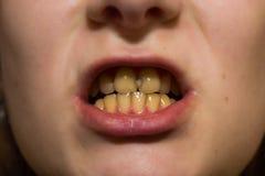 Gula tänder med karies royaltyfria foton