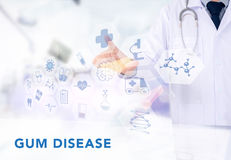 GUM DISEASE CONCEPT. Medicine doctor working with computer interface as medical Royalty Free Stock Images
