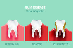 Gum disease stages. Teeth infographic Royalty Free Stock Images