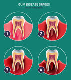 Gum disease vector Stock Photography