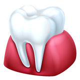 Gum and Tooth Royalty Free Stock Photo