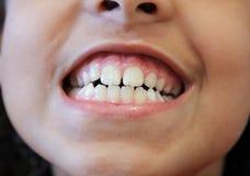 gummin som visar tänder Arkivbilder