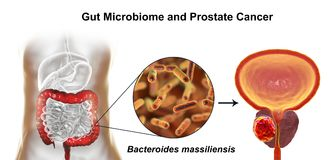 Gut microbiome and prostate cancer. 3D illustration showing association of Bacteroides massiliensis bacteria present in large intestine and prostate cancer Stock Images