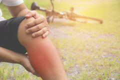 The guy clings to a bad leg. The pain in his leg after exercise. Stock Photo