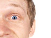 The guy eye disease. Red-eye Stock Photography