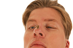Guy looks squint-eyed to moth on nose Royalty Free Stock Photography
