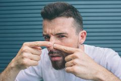 Guy is squeezing pimples on his nose. He is looking close on camera. Isolated on striped and blue background. royalty free stock photo