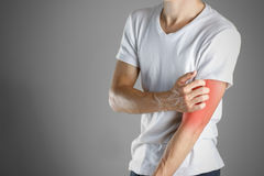 Guy in white shirt scratching his arm. Scabies. Scratch the hand. Isolated royalty free stock photography
