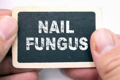 Gwoździa grzyb, tekst na blackboard fotografia royalty free