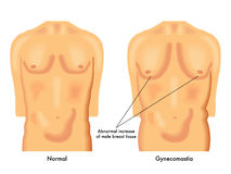 Gynecomastia vektor illustrationer