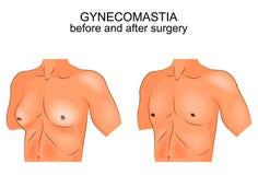 Gynecomasty antes y después de cirugía ilustración del vector