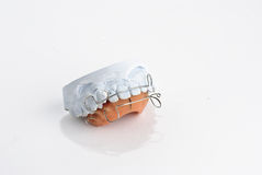 Gypsum model. Plaster of tooth with braces isolated on white background Stock Images