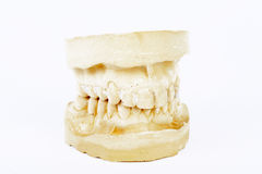 Gypsum model for denture isolated Stock Photo