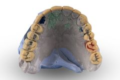 Gypsum model of human jaw stock images
