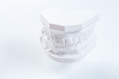 Gypsum model of human jaw on a white background. Stock Photography