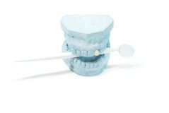 Gypsum model of human teeth Royalty Free Stock Photos