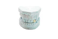 Gypsum model of human teeth Royalty Free Stock Photos