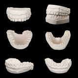 Gypsum models plaster cast stomatologic human jaws Stock Photos