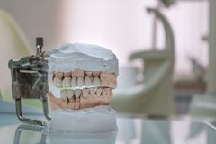 Gypsum Stomatologic human jaws. Ceramic-metal crown on plaster model on blurred background of dental office. Ceramic-metal crown on plaster model on blurred stock photography
