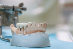 Gypsum Stomatologic human jaws. Ceramic-metal crown on plaster model on blurred background of dental office. Ceramic-metal crown on plaster model on blurred royalty free stock photos