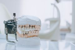 Gypsum Stomatologic human jaws. Ceramic-metal crown on plaster model on blurred background of dental office. White tone. Gypsum Stomatologic human jaws. Ceramic stock image